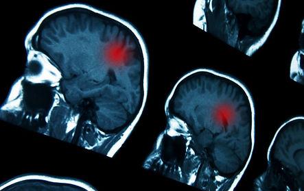 Treatment of Brain Tumor