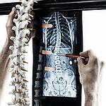 Orthopedik treatment