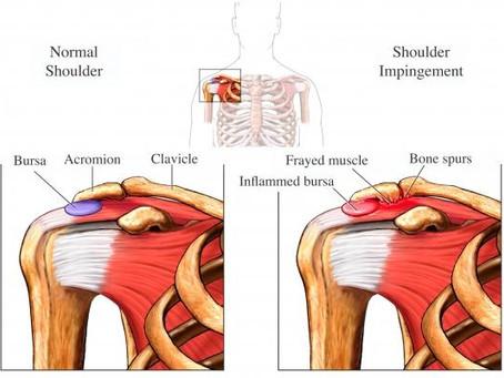 Shoulder Anterior Impingement Syndrome...aka SAIS