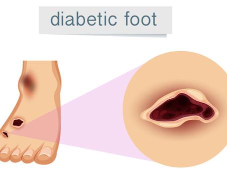 糖尿病與周邊神經病變