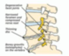 spinal stenosis2.jpg