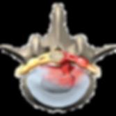 lumbar_herniation_intro01_edited.png