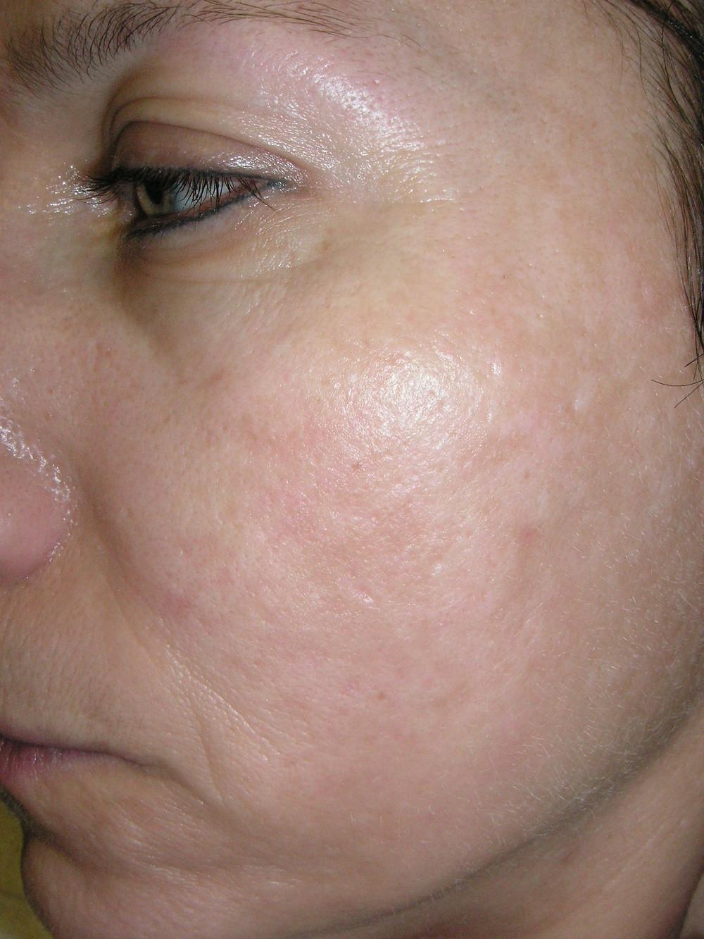 Skin peeling treatment