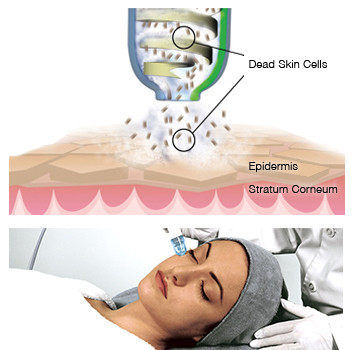 How Microdermabrasion Work