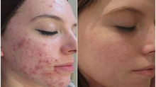 Collagen Induction Therapy/ Skin needling