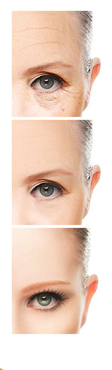 eye wrinkle treatment