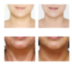 Neck lines treatment