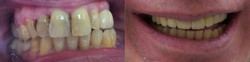 Full Mouth Rehabilitation with crown