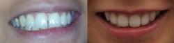 Invisalign Dental Transformation