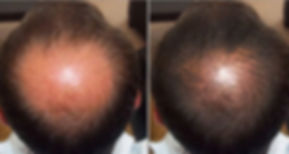 Why You OnlyLose HairOn Your Head…