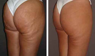 carboxy-cellulite.jpg
