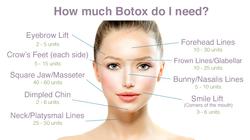 botox info!