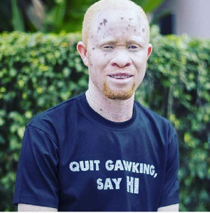 We are not carriers of coronavirus, stop tagging us – Person with Albinism