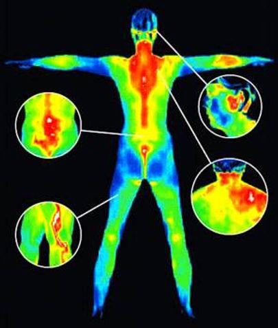 Kayropraktik Termografi
