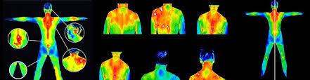 Kayropraktik Termografi görüntüleme