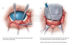 Zygomaticomaxillary Complex Fracture Sur