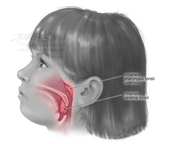 Inflamed Tonsils in Pediatric Patient