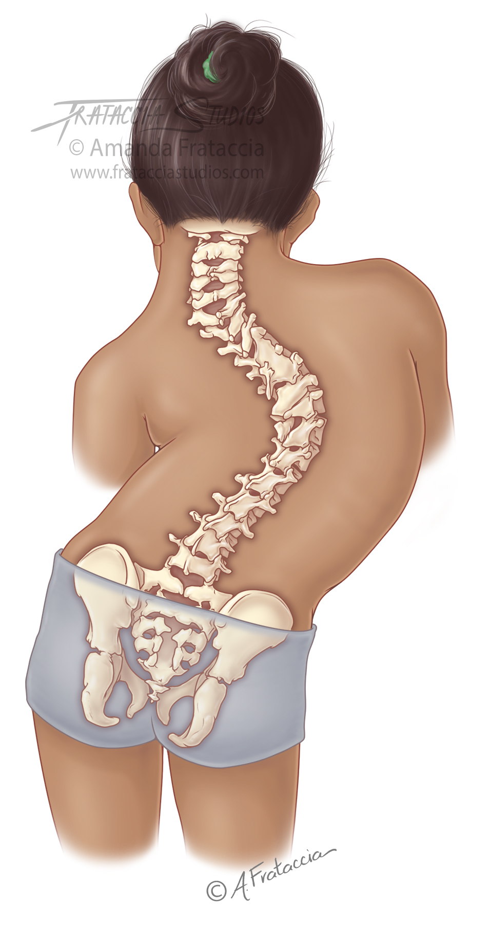 Congenital Malformations of Spine in Ped