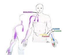 Scalenes-referred-pain 4.jpg