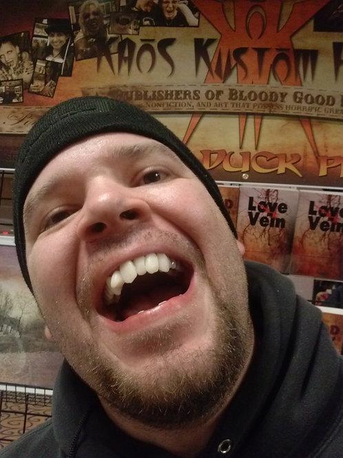 Hillbilly Teeth - Full Mouth