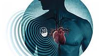 Pacemaker, Kalp Pili işlemleri, Tedavi, Bradikardi, AV TAM BLOK, AV, Kalp Yetmezliği