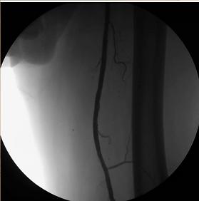 Ayak damar tıkanıklığı, perifer, arter hastalığı, diyabetik ayak, gangren, yürümede zorluk, ağrı, balon stent