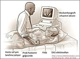 Ekokardiyografi,EKO, Eko cihazi, Ses dalgaları, Tehşis, Kalp