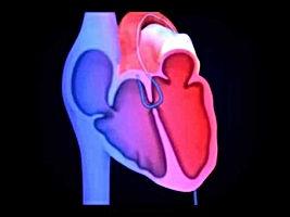 Kalp, Tedavi, Doğum, Konjenital, Hastalık, Bebek, Konjenital hastalığı