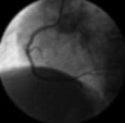 CTO, Kronik Total Oklüzyon, Bypass, Cabgo, Kalp Ameliyatı, Tam Tıkalı, Girişimsel Anjiyografi, KTO, Damar tıkanıklığı, Damar darlığı