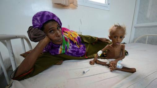 RT_yemen_children_02_as_160913_16x9_1600