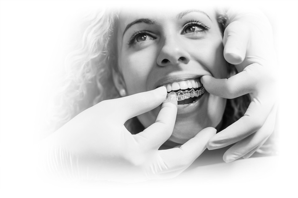 doctor-putting-clear-dental-aligner-pati