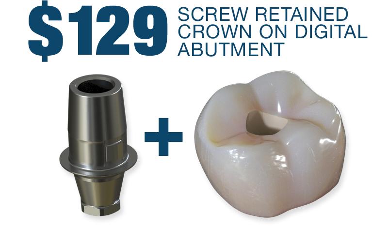 $129 Screw Retained Titanium Digital Abutment and Crown!