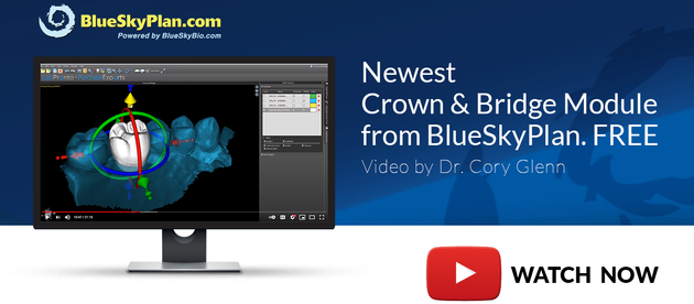 New Video: Creating a Crown Design (Free) & Fabrication with the BlueSkyPlan