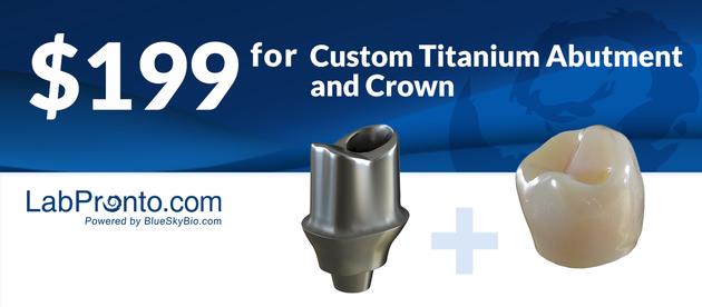 $199 Custom Titanium Abutment and Crown