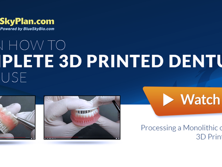 Free Training Videos. Completing and Processing a 3D Printed Denture. Two Great Options