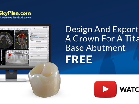 Design and Export a Crown for A Titanium Base Abutment FREE