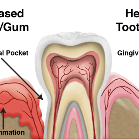 Controversial Hot Topics in Hygiene and Periodontics