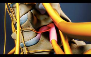 Compresión de raíz nerviosa por hernia de disco cervical