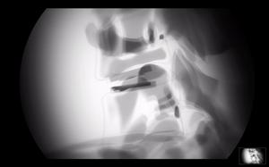 Colocación de disco artificial con rayos X