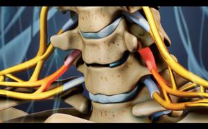 Compresión de dos raices nerviosas por disco dañado y disminución de altura de disco