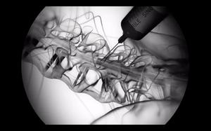 Bloqueo Radicular Selectivo bajo fluoroscopía