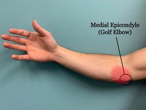 Έσω επικονδυλίτιδα (golfer's elbow) και πως να την προλάβουμε