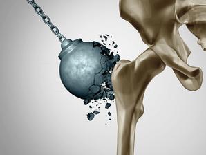 Γυμναστική και οστεοπόρωση: Ποια τα οφέλη της και τι να προσέχουμε