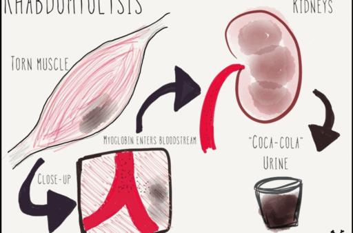 ραβδομυόλυση κύτταρο