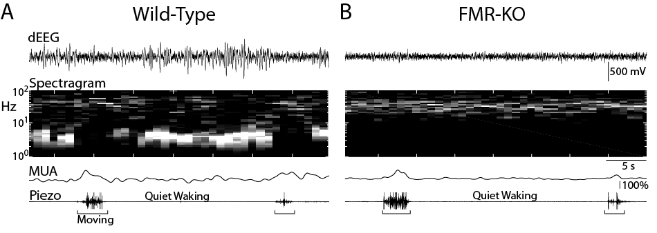 Colonnese lab data cortical activity in Fragile X