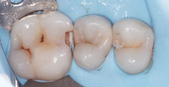 Small hole on one tooth