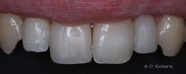 κοτσίρη δημήτρης οδοντίατρος όψεις