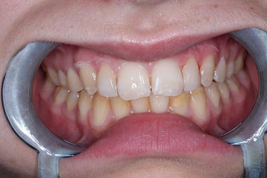 όψεις ρητίνης φτυσκό αποτέλεσμα κοτσίρης Δημήτρης οδοντίατρος