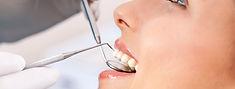 οδοντικός καθαρισμός οδοντίατρος