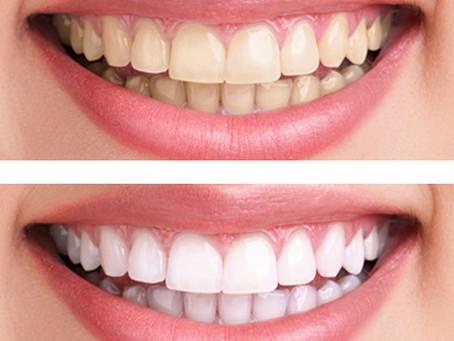 Λεύκανση δοντιών με λέιζερ σε ένα ραντεβού!